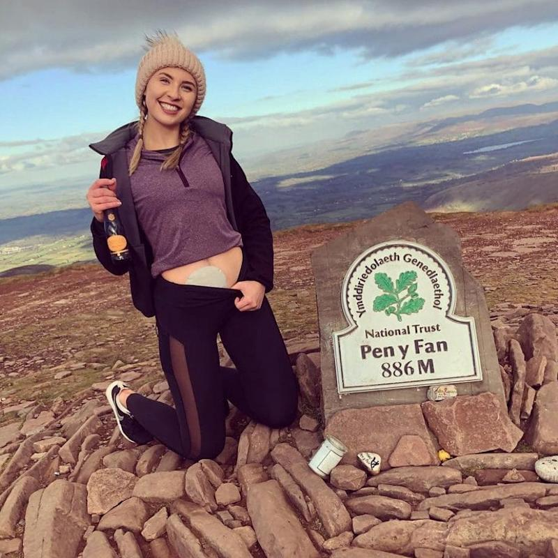 Amber Davies, 21, suffers from ulcerative colitis and the debilitating condition means she needs regular trips to the bathroom. - WALES NEWS SERVICE