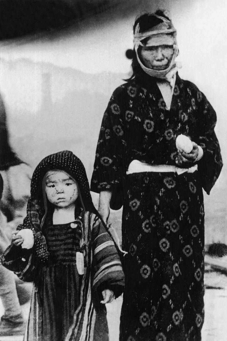 A Japanese woman is seen with a child in traditional Japanese clothing, who survived the atomic bomb dropped on Nagasaki, in Nagasaki, Japan, in this Aug. 9, 1945 file photo. Their faces are marked with burns by the heat of the explosion. Scanty food rations are given out to the suffering public.