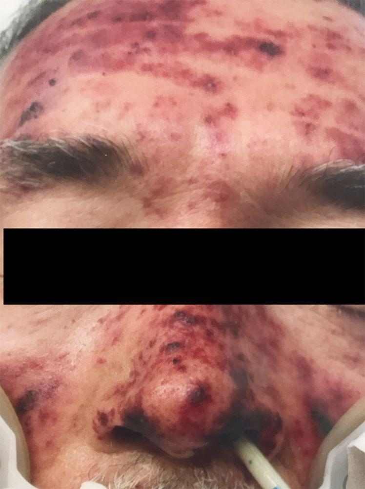 The 63-year-old man contracted a fatal infection