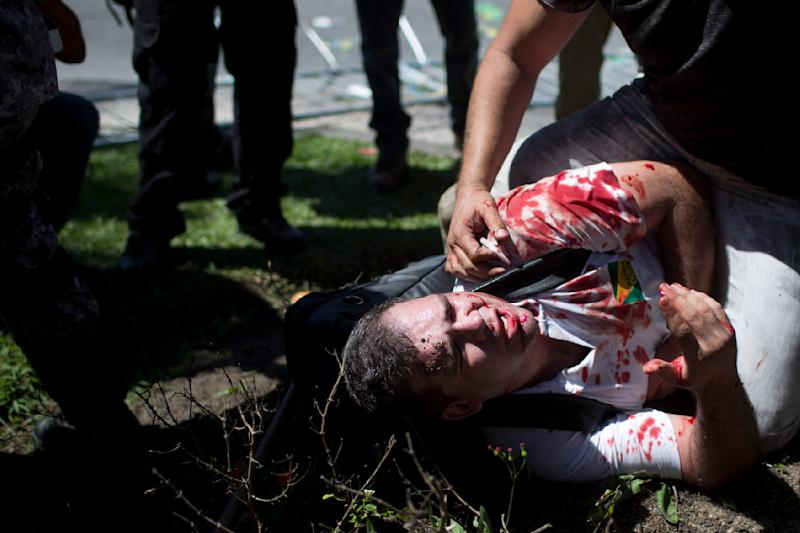 A bloodied protester is helped after being injured during clashes with the national guard at a protest against the auction of the Libra oil field near the Windsor hotel where the auction is taking place, on Barra da Tijuca beach in Rio de Janeiro, Brazil, Monday, Oct. 21, 2013. Monday's oil auction is the first in Brazil since the government created new production-sharing agreements. (AP Photo/Felipe Dana)