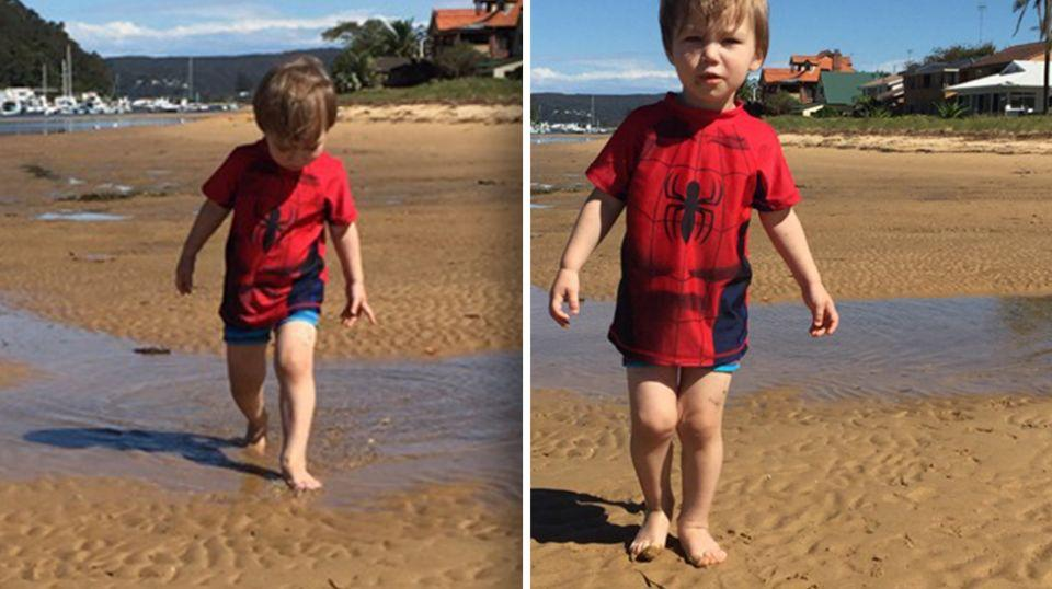 Cashten was walking with a limp for a week after stepping on the needle. Source: Supplied