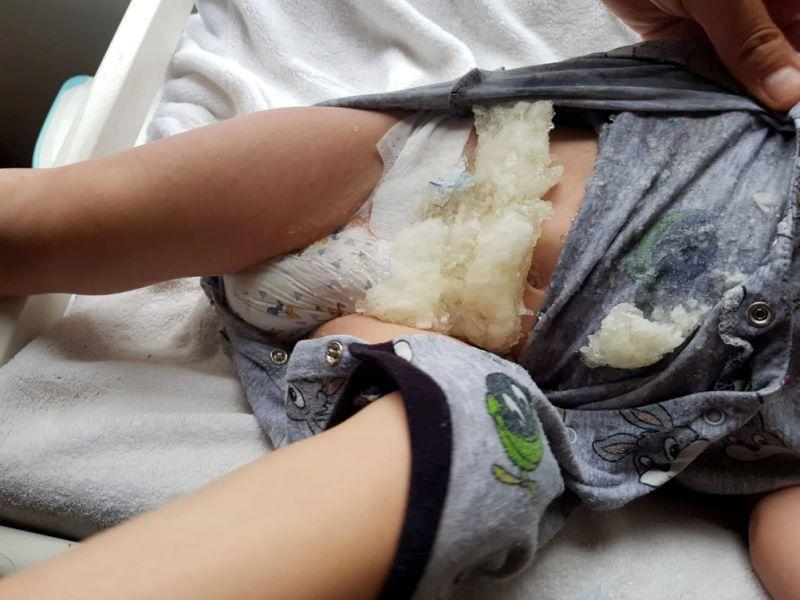 An Australian dad took to the internet to slam Huggies after his son's diaper exploded.