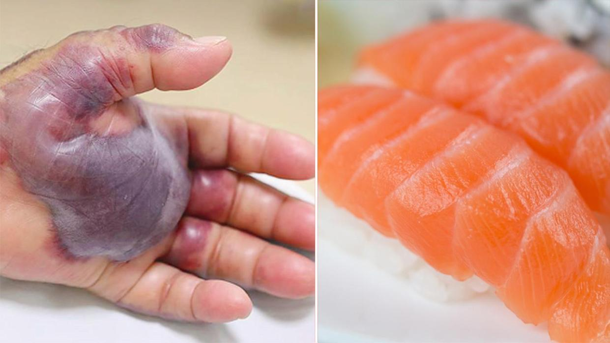 A South Korean man developed a flesh-eating bacteria after eating raw sushi. Source: New England Journal of Medicine (left)/File:Getty Images (right).