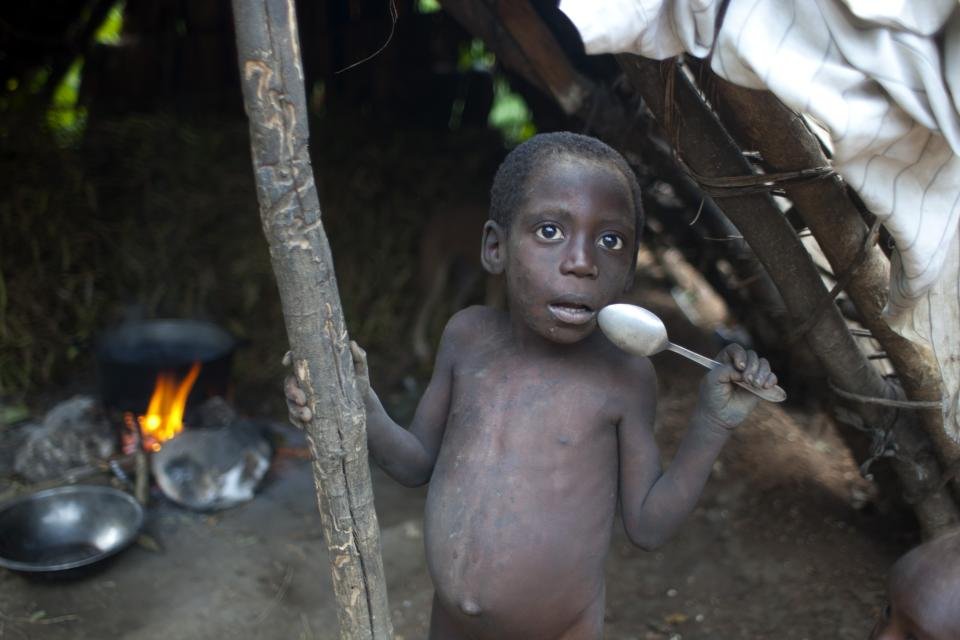 <p> In this May 22, 2013 photo, a malnourished 5-year-old Dieufort Jean stands in his kitchen holding a spoon as he waits for a meal in the community of Mabriole near the town of Belle Anse in Haiti. Mabriole town official Geneus Lissage fears that death is imminent for these children if Haitian authorities and humanitarian workers don't do more to stem the hunger problems. (AP Photo/Dieu Nalio Chery)</p>