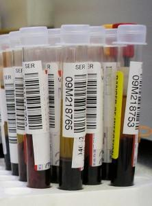 Can Doctors Diagnose MS from Blood?