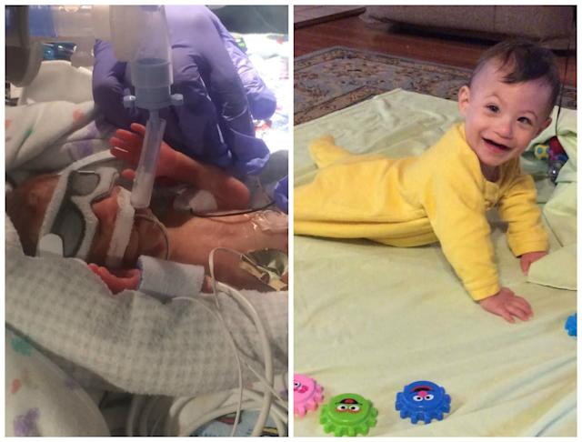 Calvin was born prematurely at 26 weeks, four days, weighing 1 pound, 1 ounce, on Oct.29, 2016. After a 79-day NICU stay, he came home weighing 3 pounds, 3 ounces. The second picture is of him now at 10 months, weighing 13 pounds, 9 ounces. <br><br>He has taught us about strength and grit. We celebrate Prematurity Awareness Day each year (last year and then this year) at the hospital where he was born.<br><br><i>--Brenna Flannery</i>