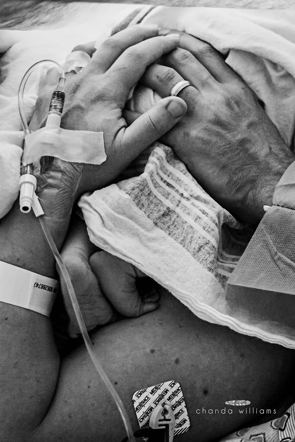 """""""This is one of my favorite cesarean images. It reminds me of the resilience of partnership, and the need to adapt together."""""""