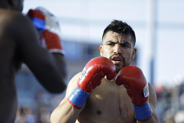 Victor Ortiz bleeds during a welterweight boxing match with Andre Berto, Saturday, April 30, 2016, in Carson, Calif. (AP Photo/Jae C. Hong)