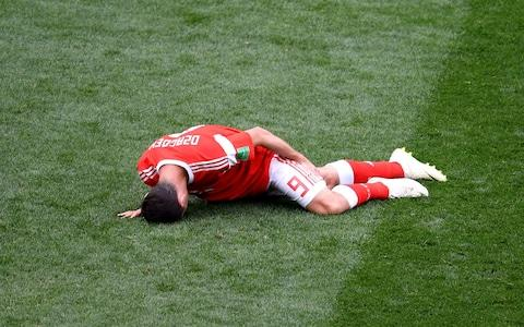 Alan Dzagoev of Russia holds his leg as he goes down injured during the 2018 FIFA World Cup Russia Group A match between Russia and Saudi Arabia at Luzhniki Stadium - Credit: Shaun Botterill/Getty Images