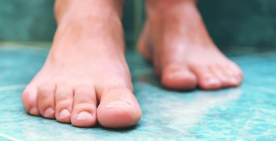 How to prevent and treat toenail fungus. Onychomycosis symptoms, risk factors, and treatment explained