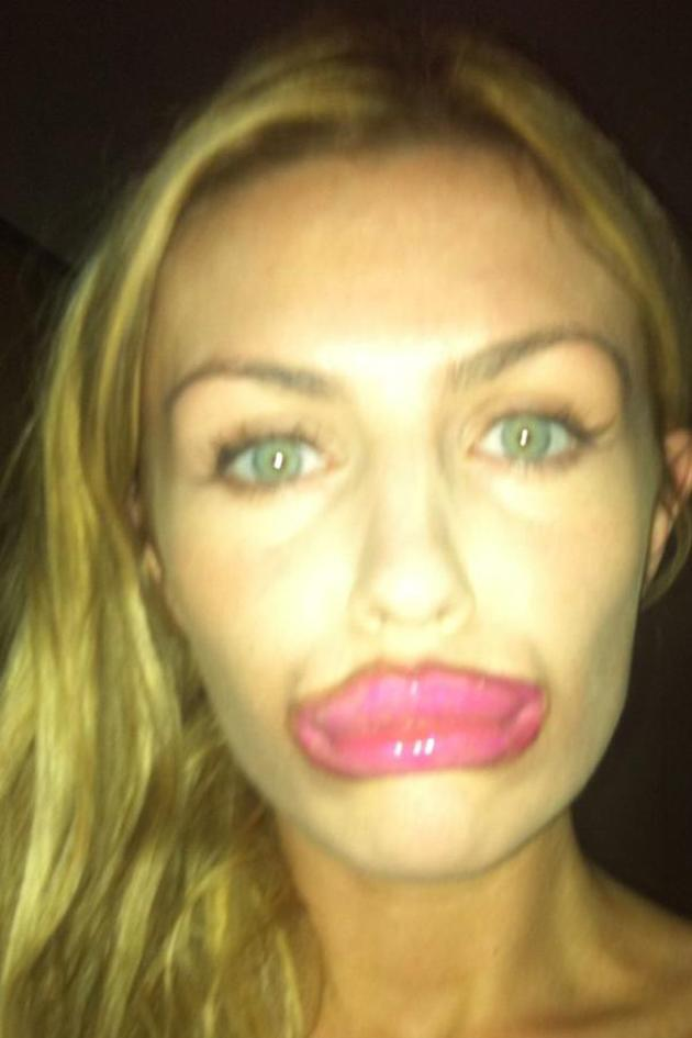 """Abbey Clancy took to Twitter this week to dismiss rumours that she's had collagen injections in her lips to plump them up. She posted this pic of her lips comically made up along with the caption: """"I swear I haven't had my lips done!!!! #foralltheintelligentpeopleoutthere!"""" Well, that told us then."""