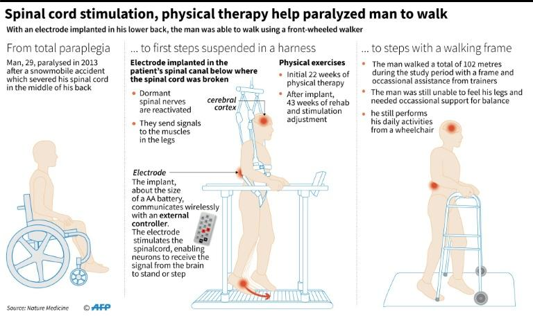 Explanation of a new scientific breakthrough which has enabled a paralysed man to take steps with a walking frame aided by an electrical implant