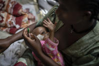 Birhan Etsana, 27, from Dengelat, uses a nasogastric tube to feed her malnourished baby, Mebrhit, who at 17 months old weighs just 5.2 kilograms (11 pounds and 7 ounces), at the Ayder Referral Hospital in Mekele, in the Tigray region of northern Ethiopia, on Monday, May 10, 2021. The lone survivor of her triplets, the infant was admitted with complications stemming from severe acute malnutrition, including heart failure. (AP Photo/Ben Curtis)