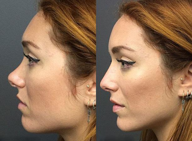 The Nonsurgical Nose Job May Be Too Good To Be True