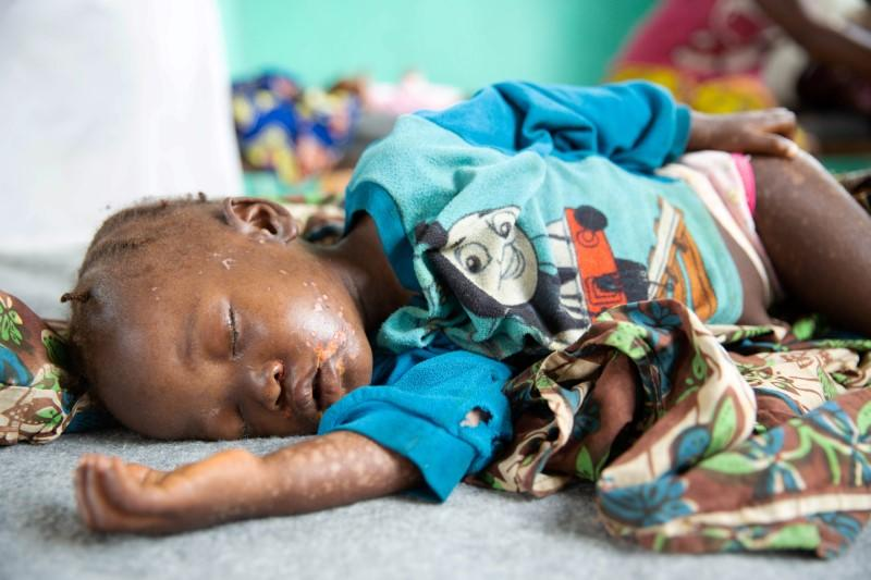 Dobo Mbanza, who developed complications that may leave her blind after contracting measles, lies on a bed in the measles isolation ward in Boso-Manzi hospital in Mongala province