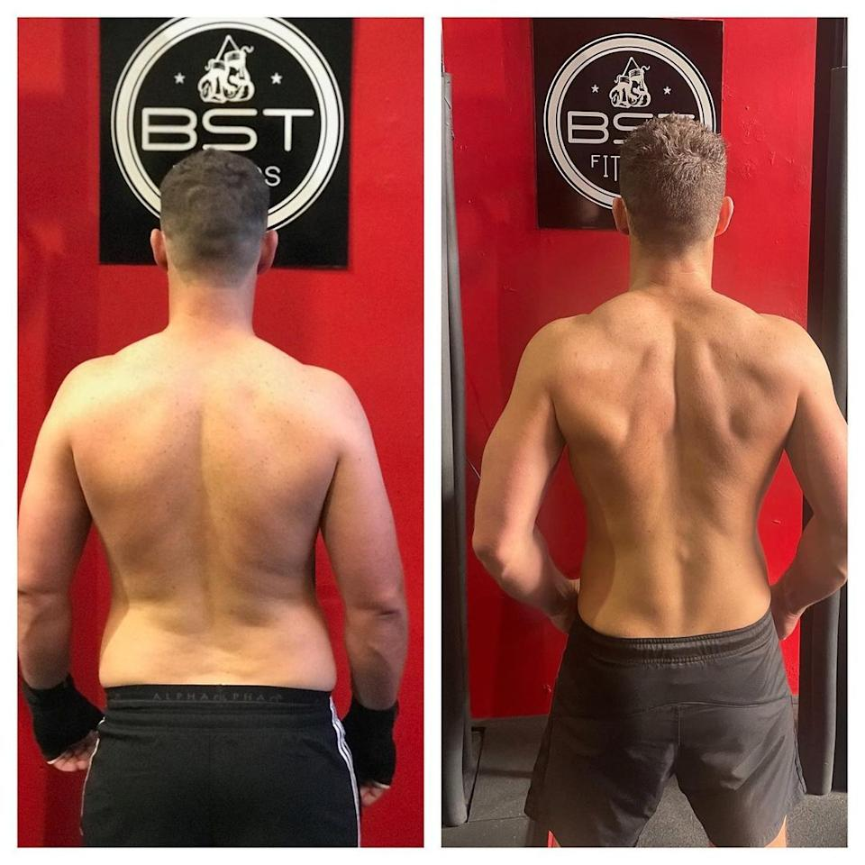Michael Goonan's back before and after
