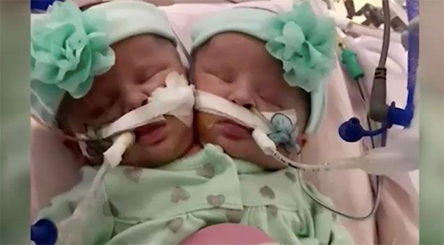 Conjoined twins Emily and Sophie. Source: WFMYNEWS2.com