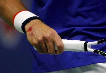 Novak Djokovic of Serbia bleeds from his right wrist after falling in the first set against Roger Federer of Switzerland during their men's singles final match at the U.S. Open Championships tennis tournament in New York, September 13, 2015. REUTERS/Mike Segar