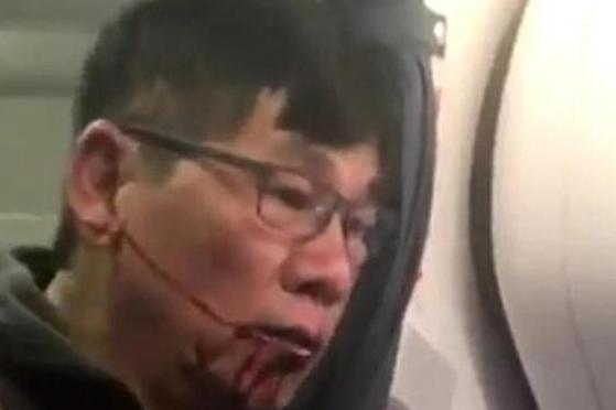 David Dao: Shocking images showed the passenger bleeding from his mouth