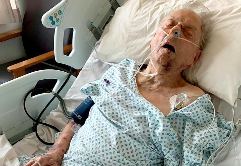 <em>Peter Gouldstone was left fighting for his life after attacked by burglars (SWNS)</em>