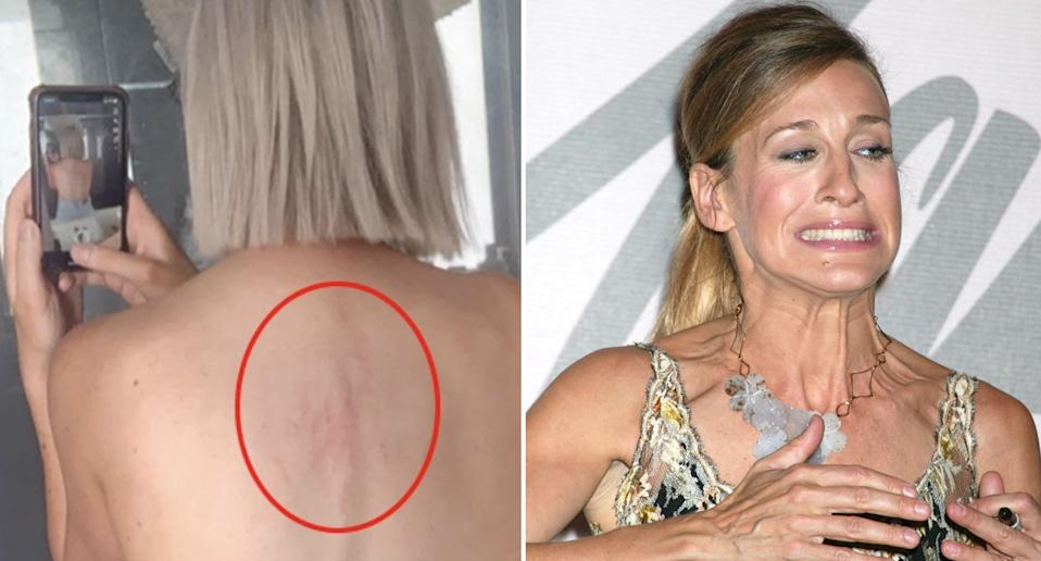 Pictured left is a woman's back injuries inflicted by a kangaroo. On the right is Sarah Jessica Parker.