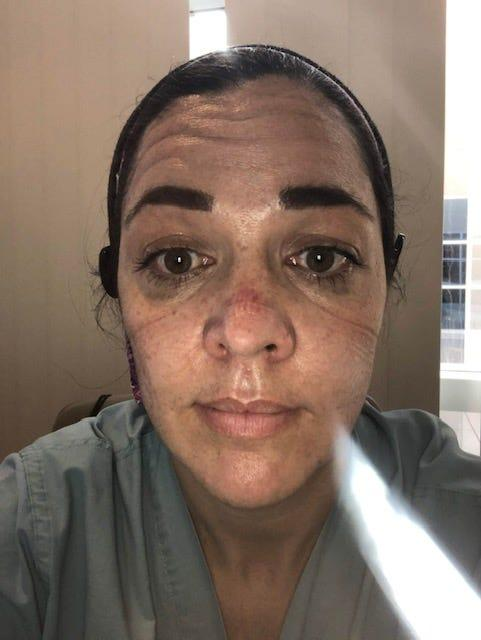 "Erin McIntosh, 38, is a nurse in Riverside County southeast of Los Angeles, where COVID-19 rates have been skyrocketing. McIntosh took this selfie on Mother's Day at the beginning of the pandemic, ""after a 12 hour shift with no break,"" she said. ""I lost a patient after spending much of my day trying to keep them alive. A lot of time has passed since then and it's gotten so much worse."""
