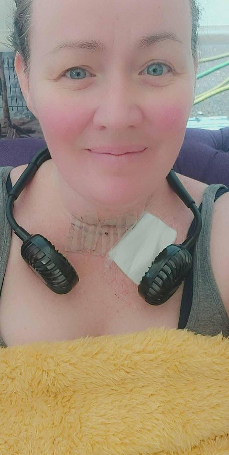Jemma while her neck was healing. PA REAL LIFE COLLECT