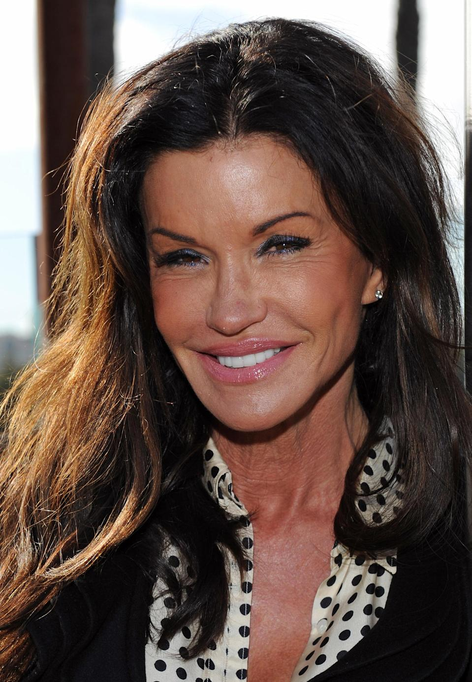 """<div class=""""caption-credit""""> Photo by: (Photo by JB Lacroix/WireImage)</div>Janice Dickenson was another early proponent of Botox. [I've gotten] Botox every six months since it became available,"""" she told <i>People</i> in 2004. """"I was the first in line. If it meant keeping me young, I was the first to sign up. I live for Botox."""""""