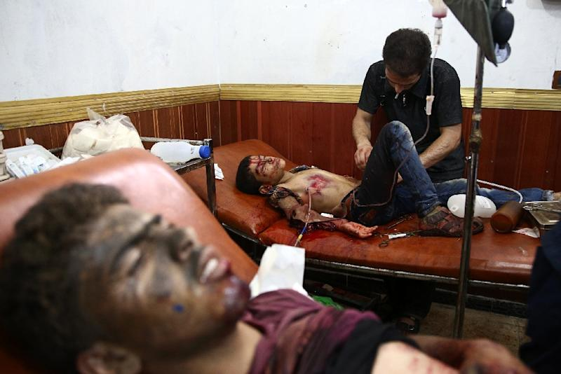 Injured Syrian boys receive treatment at a make-shift hospital in the rebel-held area of Douma, east of the capital Damascus, following air strikes by Syrian government forces on a marketplace on August 16, 2015 (AFP Photo/Abd Doumany)