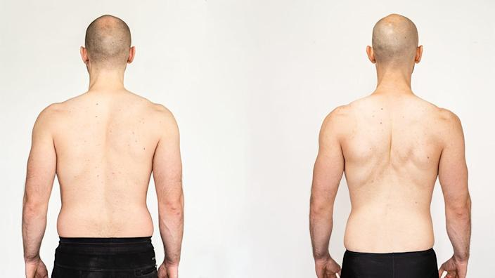 Brendan Jones viewed from the back, before and after he lost fat.