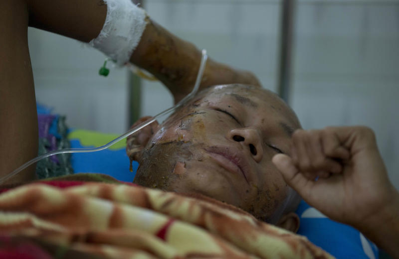 A Buddhist monk with burn injuries lies in a hospital bed in Monywa, northwestern Myanmar, Thursday, Nov. 29, 2012. Security forces cracked down on protesters occupying a copper mine early Thursday, using water cannons and other devices to break up the rally hours before opposition leader Aung San Suu Kyi was expected to hear their grievances. Unexplained fires engulfed the protest camps at the Letpadaung mine in northwestern Myanmar and dozens of Buddhist monks and villagers were injured, according to several protesters. (AP Photo/Gemunu Amarasinghe)