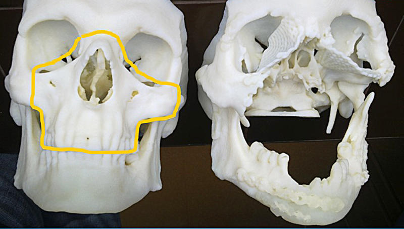 This computerized tomography provided by the Cancer Center and Institute of Oncology in Gliwice, Poland, shows the skull of a 33-year-old Polish man after it was damaged in a work accident, right, alongside the healthy skull of another person. Polish doctors performed a total face transplant on the man on May 15 in a 27-hour operation. In a news conference on Wednesday they said it was the first time a life-saving face transplant was carried out soon after a recipient suffered damage. There have been several other transplants worldwide in recent years but in those cases doctors had months or years to prepare. The Polish patient suffered his accident on April 23, 2013.(AP Photo/Cancer Center and Institute of Oncology in Gliwice)