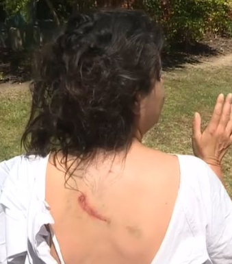 Pictured is a large scratch on Dina's back. Source: Nine News