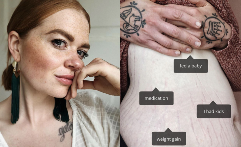 Liz Peck, a body neutrality blogger, has issued a powerful alternative to the way we talk about stretch marks. (Images via Instagram/BelovedLiz)