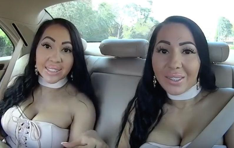 worlds most identical twins pregnant
