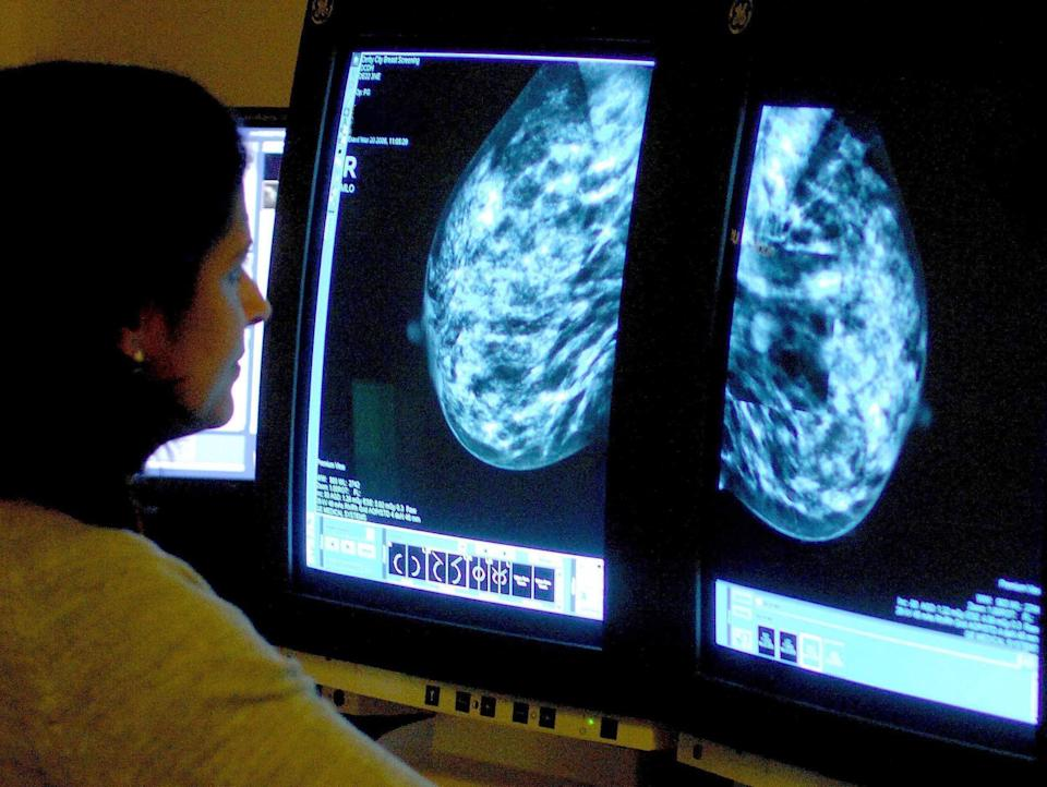 Breast cancer screening (PA Wire)