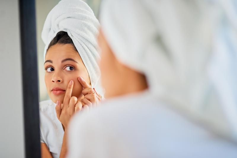 An unwanted zit comes at the worst times. I'm confident in saying I've found the product that can fight those breakouts in one night. (Photo: Getty Images)