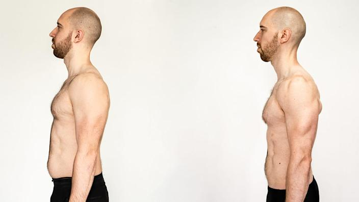 Brendan Jones viewed from the side before and after his