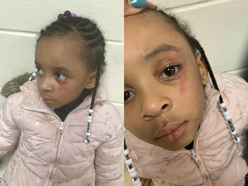 Hailey Turner told her mom that she was hit in the eye by her teacher. (Photo courtesy of Ciara Morgan)