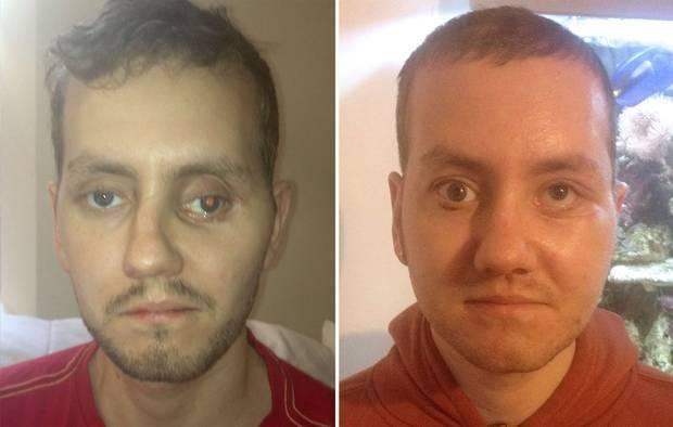 """<p>A Wales man is thought to be one of the first to receive major 3D-printed plastic surgery, <a href=""""http://www.everwideningcircles.com/2014/04/19/3d-printing-our-world/"""" rel=""""nofollow noopener"""" target=""""_blank"""" data-ylk=""""slk:receiving a 3D-printed eyeball and facial-structure plates"""" class=""""link rapid-noclick-resp"""">receiving a 3D-printed eyeball and facial-structure plates</a> in 2012. <i>(Photo: Getty)</i></p>"""