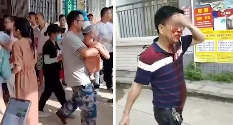 Man carries child, while another man seen with blood on his face.
