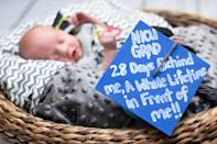 "<p>""NICU GRAD, 28 Days Behind Me, A Whole Lifetime In Front Of Me!!""<em> (Photo via: <a rel=""nofollow noopener"" href=""https://www.bellababyphotography.com/"" target=""_blank"" data-ylk=""slk:Bella Baby Photography"" class=""link rapid-noclick-resp"">Bella Baby Photography</a>)</em> </p>"