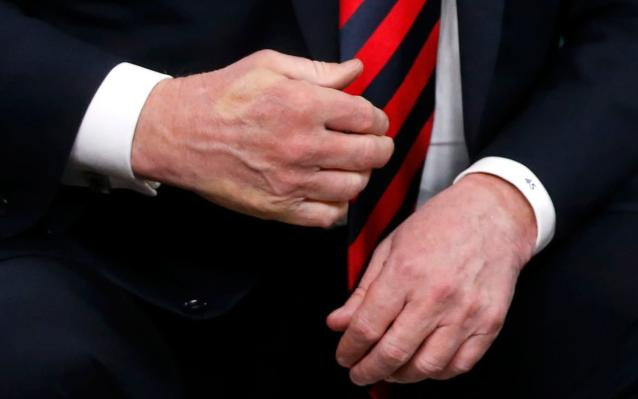 <p>The imprint of French President Emmanuel Macron's thumb can be seen across the back of U.S. President Donald Trump's hand after they shook hands during a bilateral meeting at the G7 Summit in in Charlevoix, Quebec, Canada, June 8, 2018. (Photo: Leah Millis/Reuters) </p>