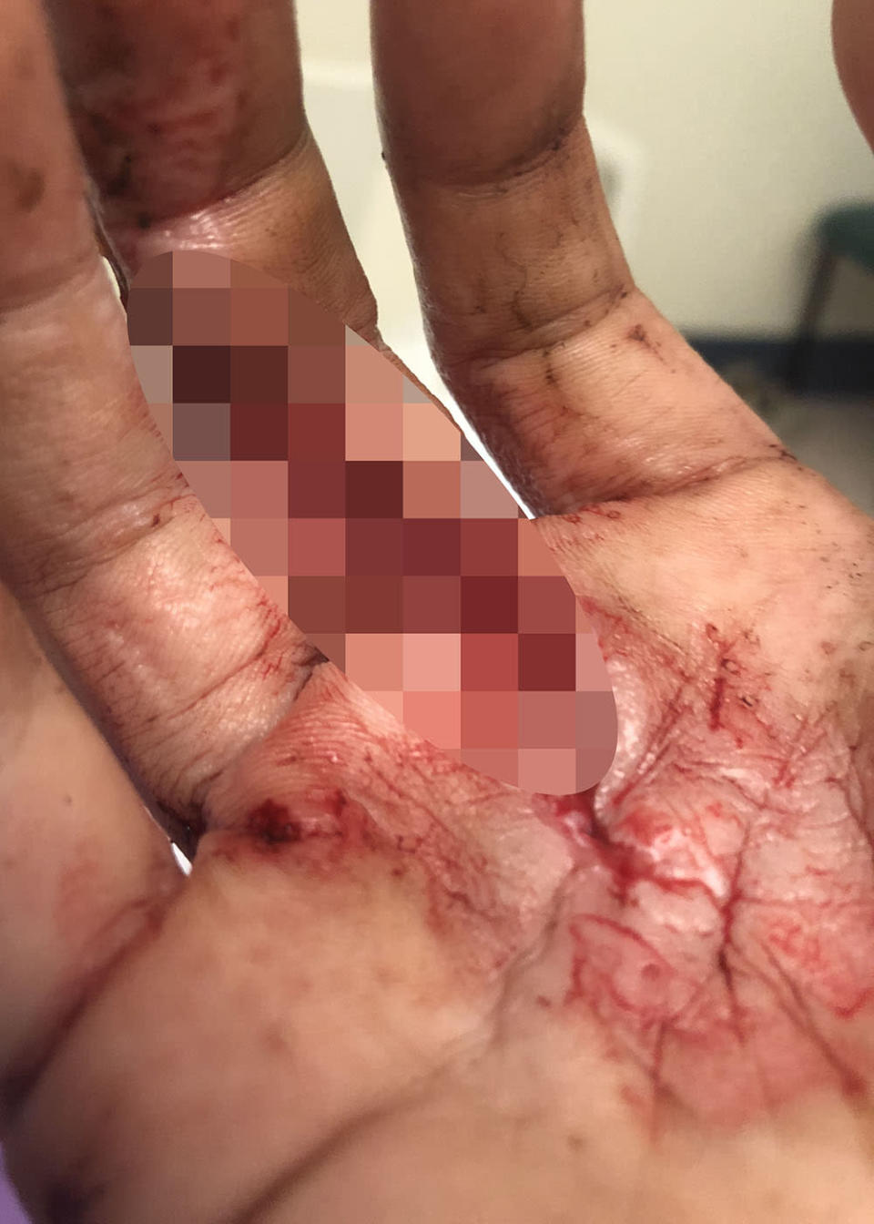 Sarah Wylie's hand injury, which she sustained as she fell down the mountain in Queensland. Source: Caters