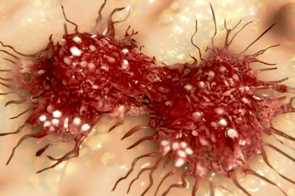 The uncrontolled division of cancer cells leads to the carcinogenesis.