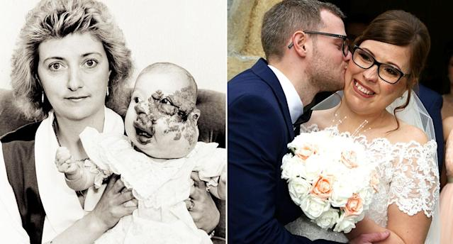 A bride who was born with a facial deformity got her happily ever after when she married her long-term partner. (Photo: SWNS)