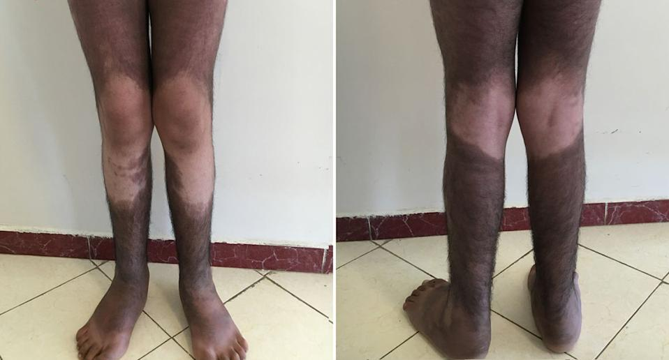 A man, 19, pictured with a dark skin pigmentation due to a genetic mutation known as H syndrome.