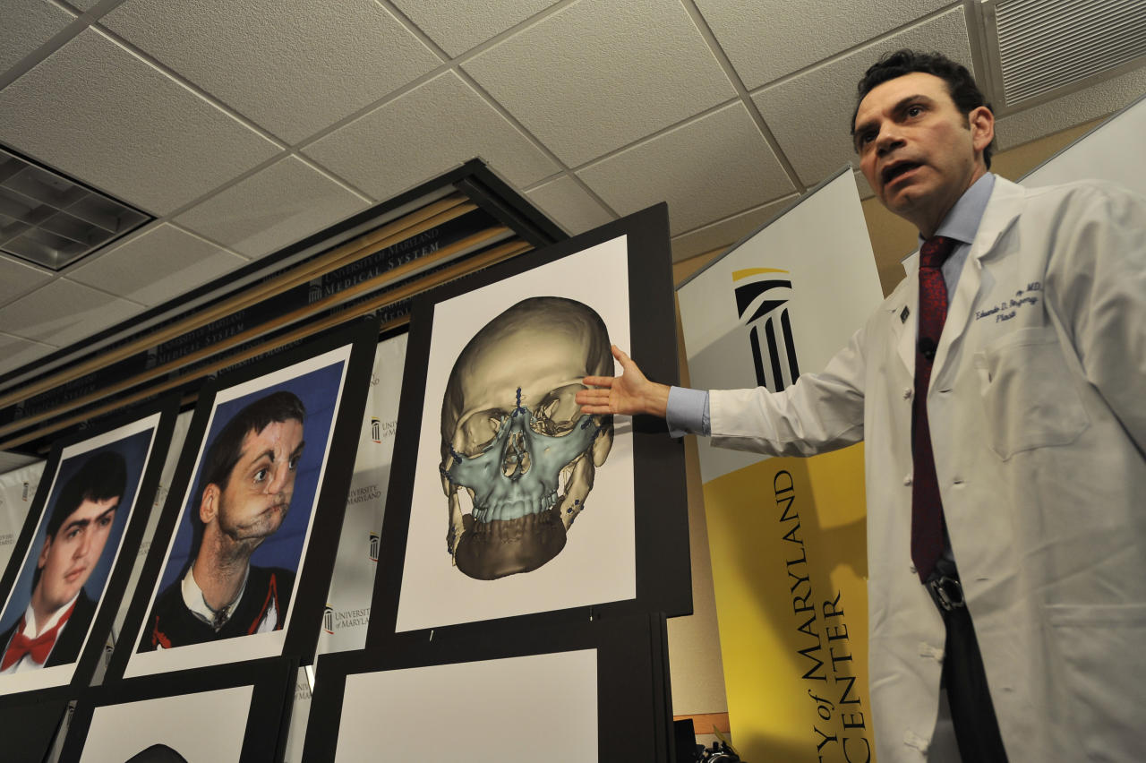 Eduardo D. Rodriguez, M.D., Chief of Plastic, Reconstructive and Maxillofacial surgery at the University Medical Center, explains the most extensive full face transplant completed to date performed on Richard Lee Norris, pictured at left, during a news conference Tuesday, March 27,2012 at the University of Maryland Medical Center in Baltimore.(AP Photo/Gail Burton)