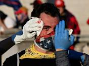 A supporter of US President Donald Trump is helped after being assaulted by an unknown assailant at the rally in Washington