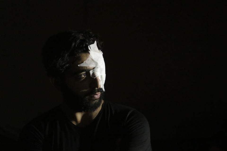 An anti-government protester whose eye was injured during clashes with riot policemen looks towards a light in Beirut, Lebanon, Friday, Oct. 18, 2019. Lebanon erupted in protests Thursday over the government's plans to impose new taxes amid a severe economic crisis, taking their anger on politicians they accuse of widespread corruption and decades of mismanagement. (AP Photo/Hassan Ammar)